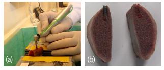 cs10 Universidad Mondragon - dental implants 2