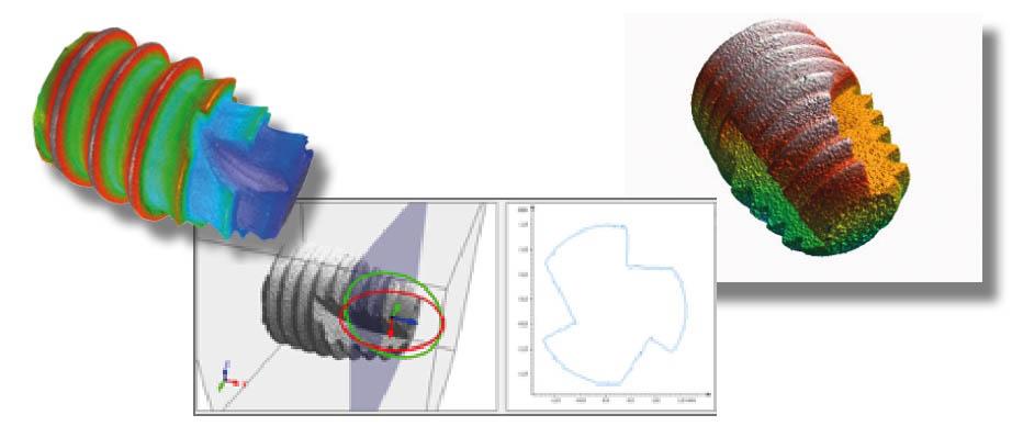 cs_dental-implant-surface5