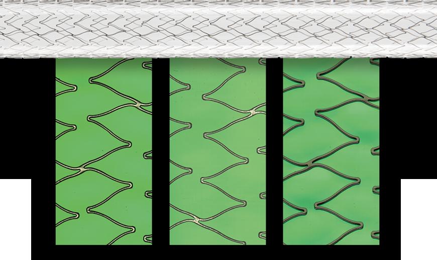 SensoINSPECT software stent unrolled