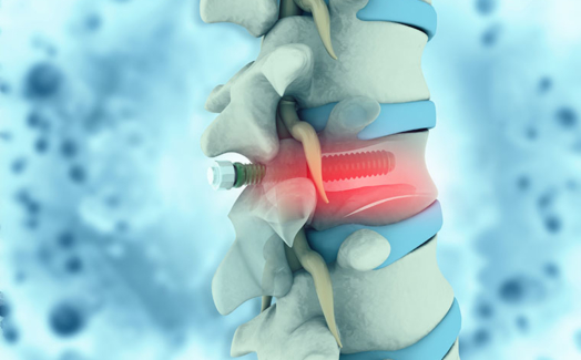 Medical implant manufacturing and control