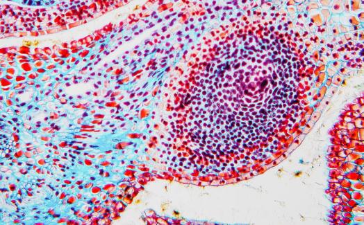 生物学的応用向けナノプレッシャーセンサーの初期たわみ測定